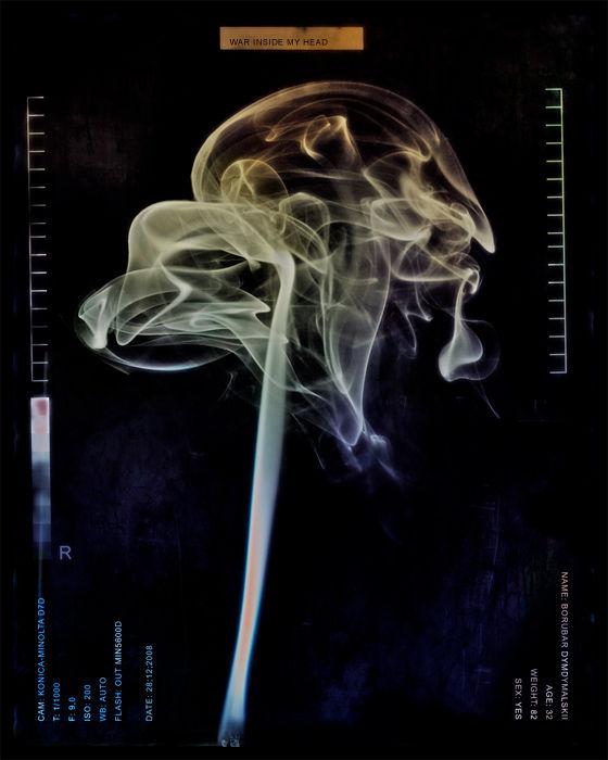 Dymdymały cz V - tomografia mózgu