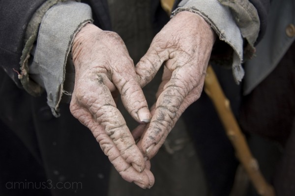 hands worn by a hard life
