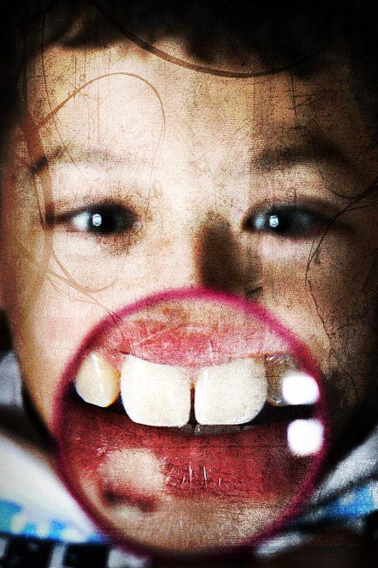 boy with big teeth