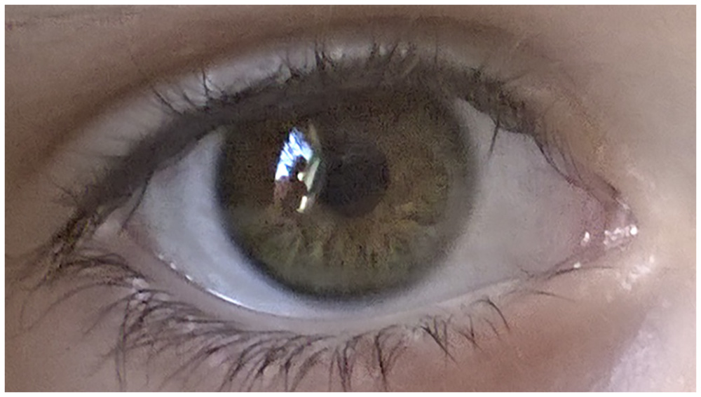 This Little Eye