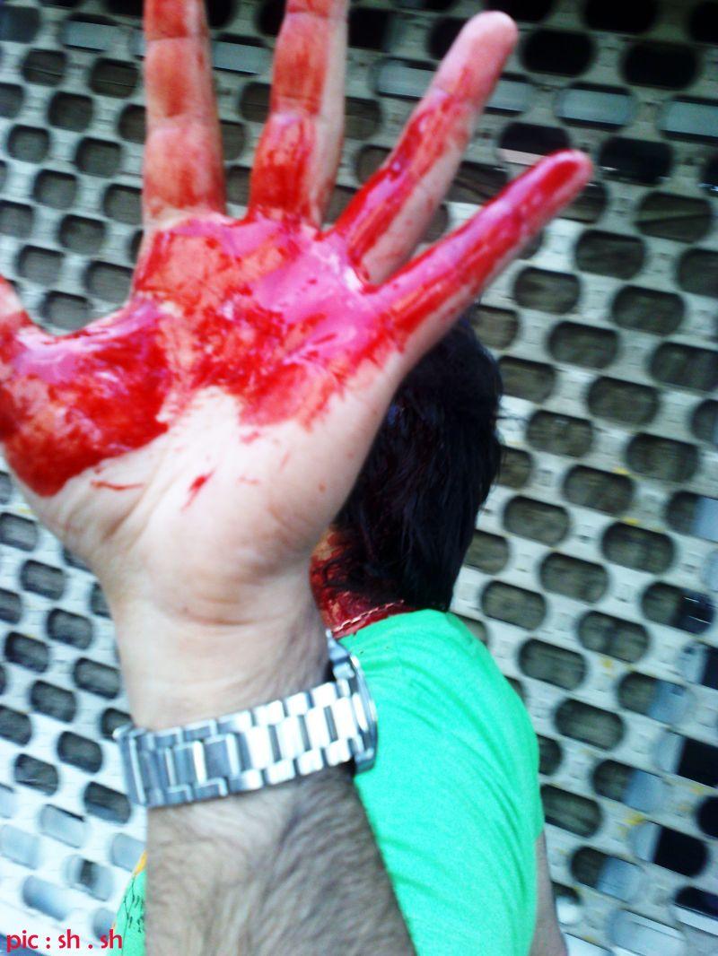 عکس دست خونی