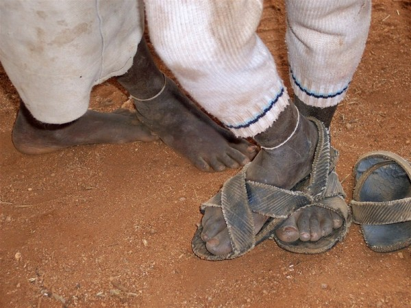 Two African's feet.