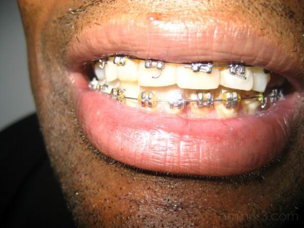 ...metal mouth...