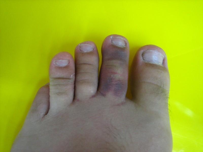 my injured toe