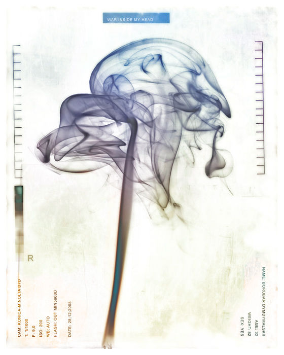 Dymdymały cz V biała - tomografia mózgu