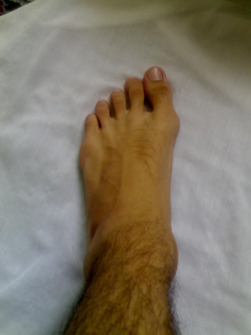 این پای مرده یا میمون