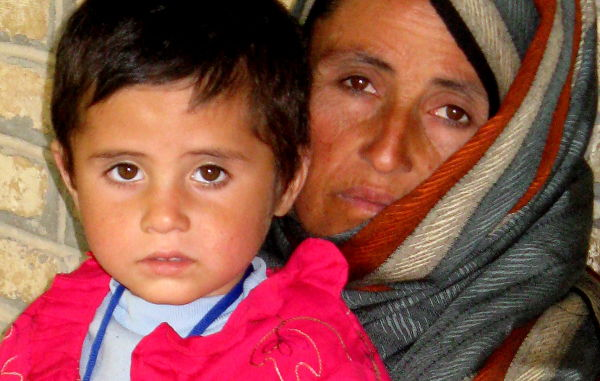 afghan mother with a child who lost a leg in a fir