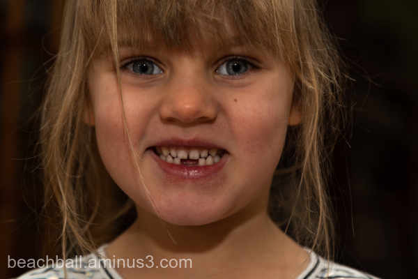 Little girl missing two teeth
