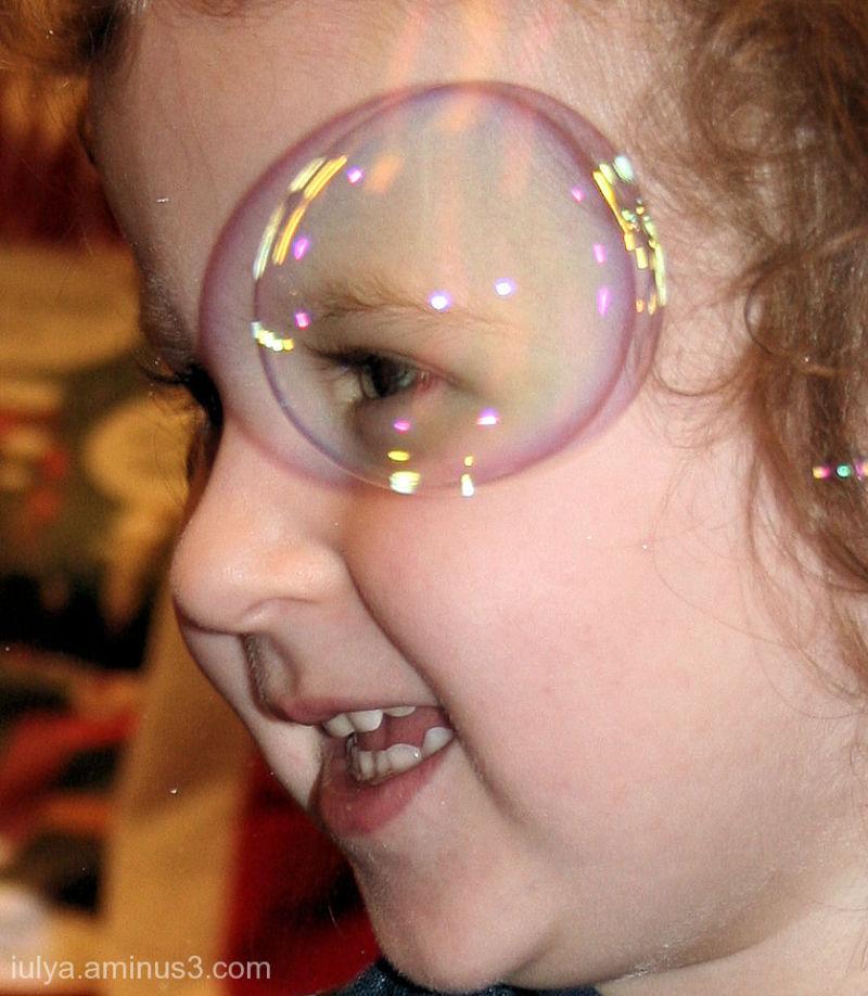 Bubble eye