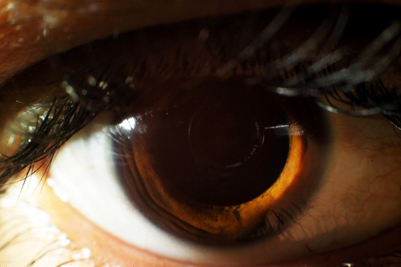 eye, occhi,andrea auf dem brinke, photo, image