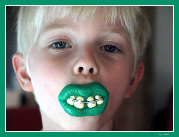 benni and his new teeth