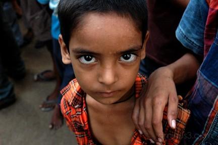 child with large eyes