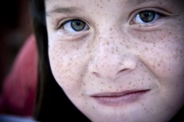 Ellie's Freckles