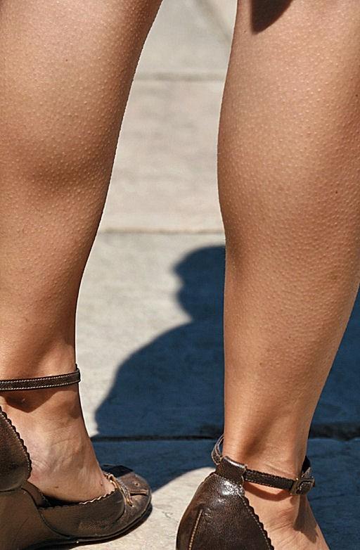 Only legs XVIII