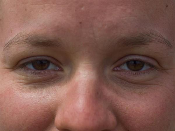 In the eye 7
