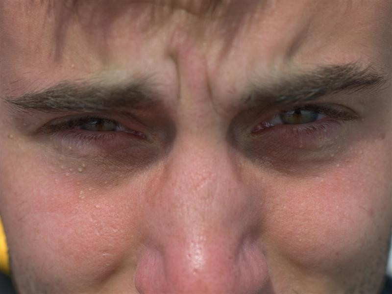 In the eye 8