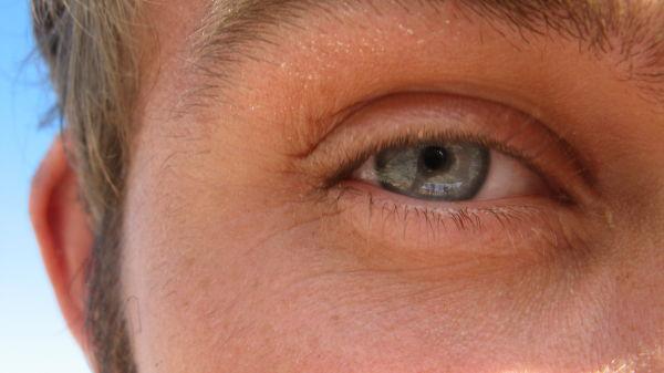 salty eyes