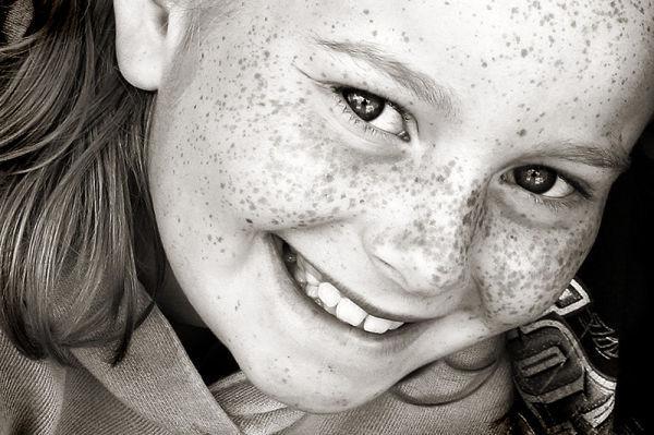 freckle faced girl