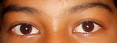 Curious-'Eye Capturing Eyes'