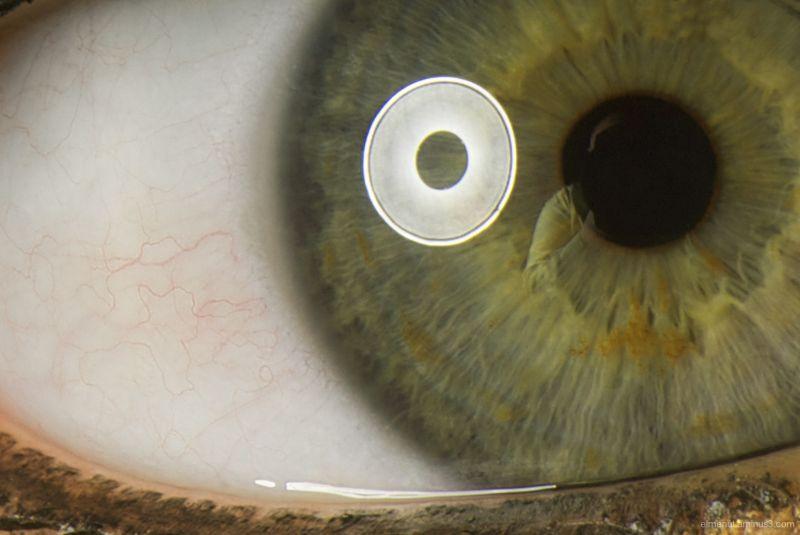ull eye