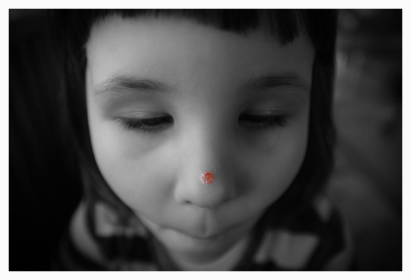 face of little girl with chicken pox