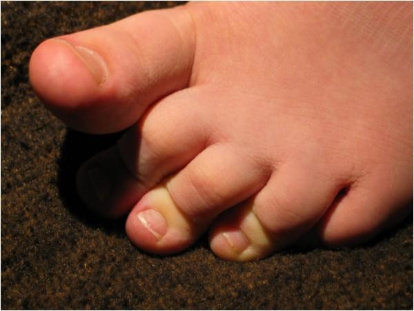 Denn's little toe-ies