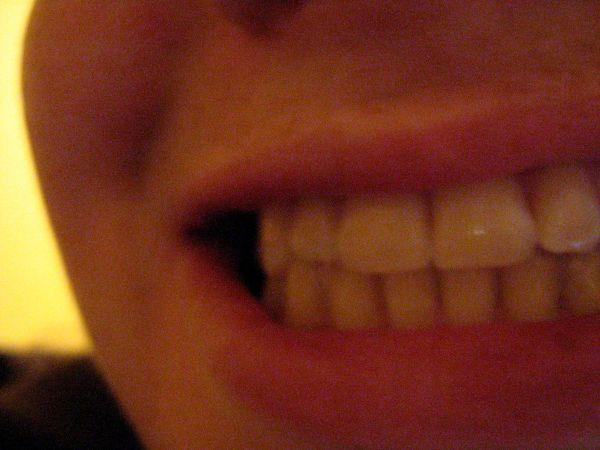 Day 104: Teeth