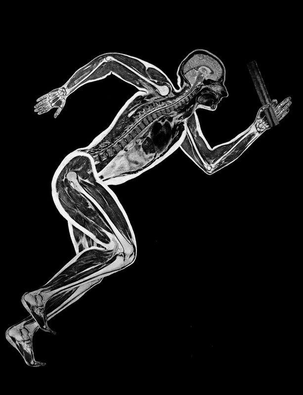 081117 - MRI artistics III