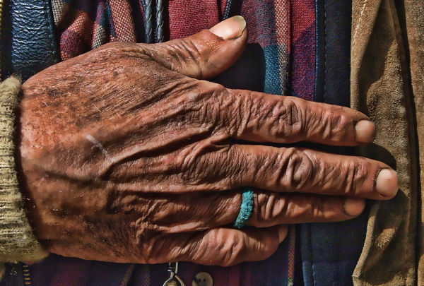 Closeup of the hand of a homeless Vietnam Veteran