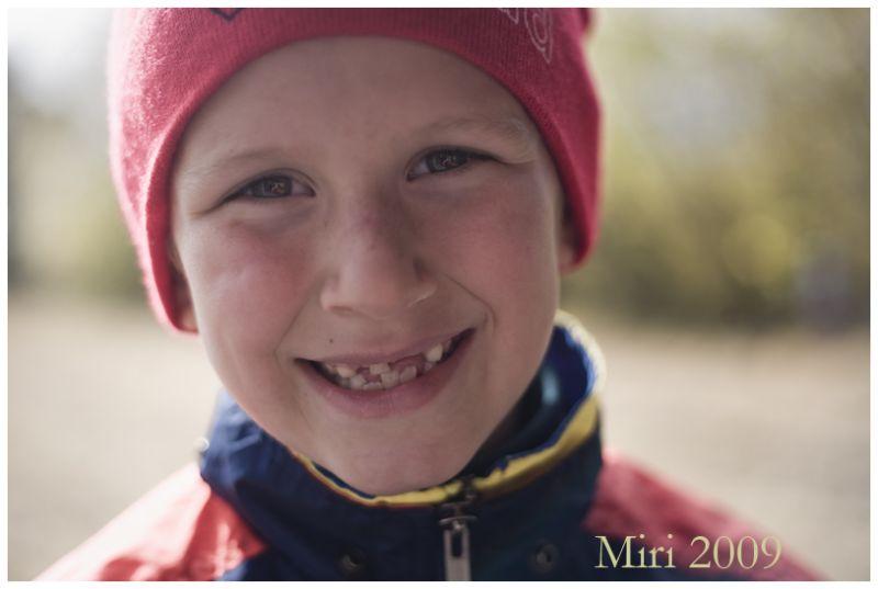 a boy, teeth missing