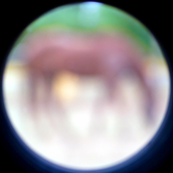 Out of Focus 41