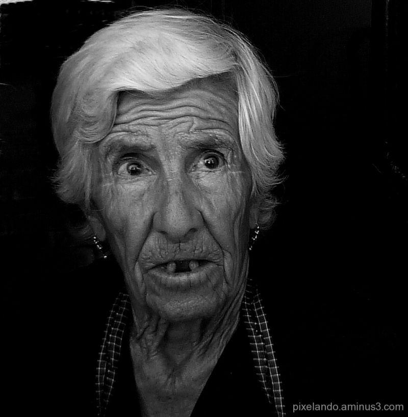 mujer mayor desdentada con cataratas en los ojos