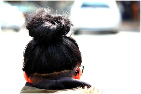 scalp line