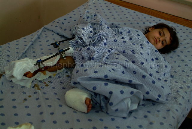 The civilian wounded victim in kandahar Afghanista