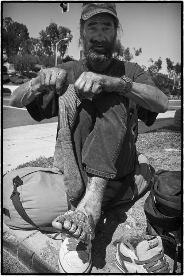homeless man shows foot