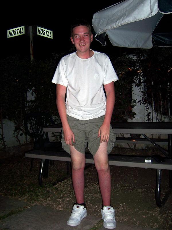 Spring Break, Cancun, Mexico. Sunburnt Englishman