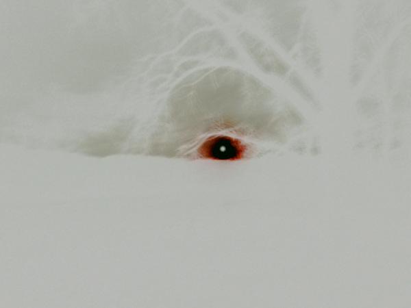 negative eye