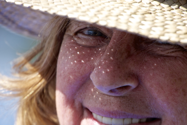 Sun Freckles