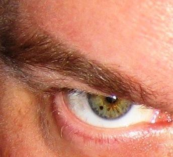 Self portrait eyeball freckle